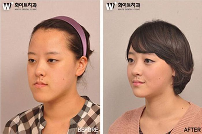Before and After Plastic Surgery (29 pics)