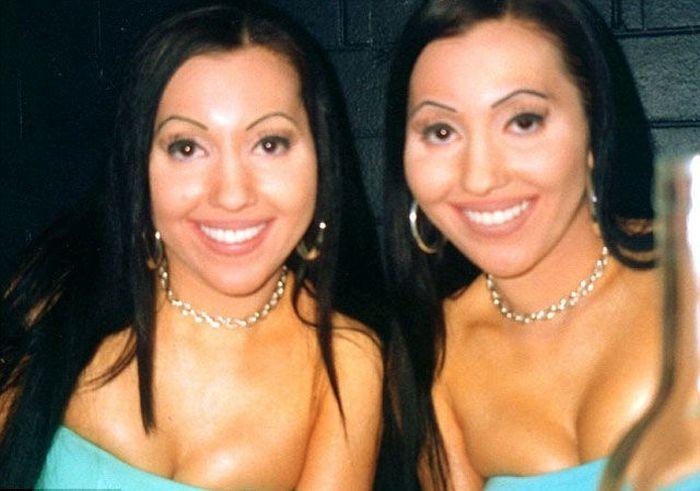 Silicone Twins (24 pics)