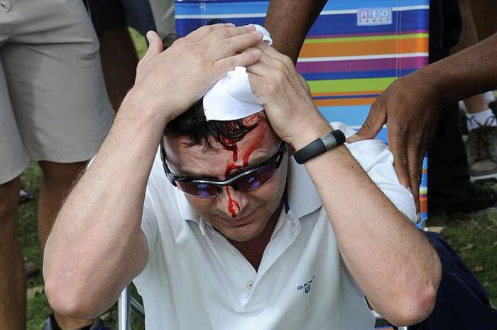 Tiger Woods Hits Fan in Head (5 pics)