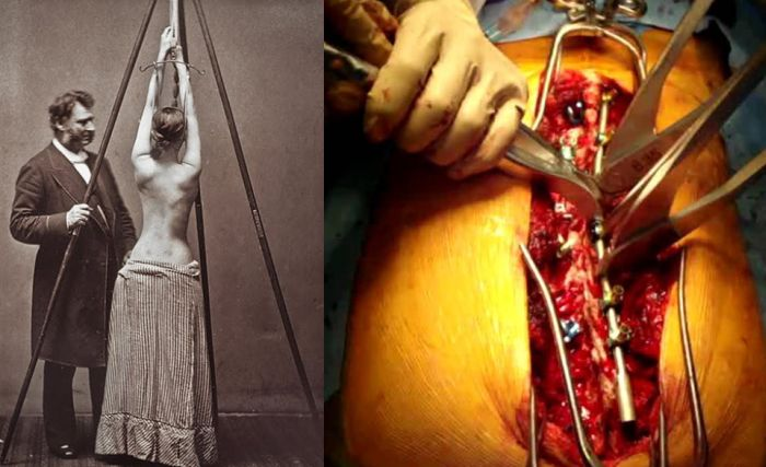How Medical Technology Has Changed Over the Years (13 pics)