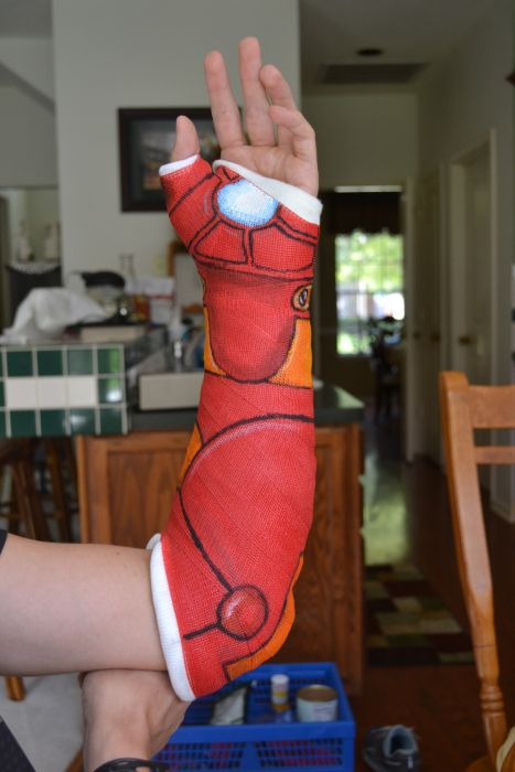 How to Wear a Cast in the Right Way (9 pics)