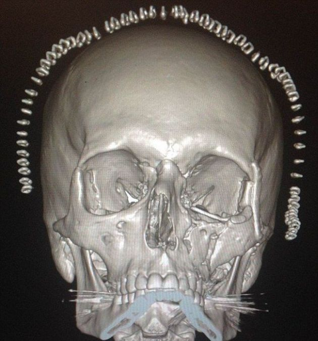 3D-Printed Skull for a Crash Victim (5 pics)