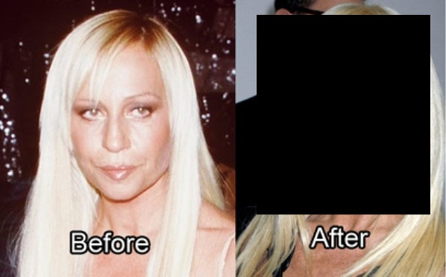The Worst Plastic Surgery Disasters Ever (21 pics)
