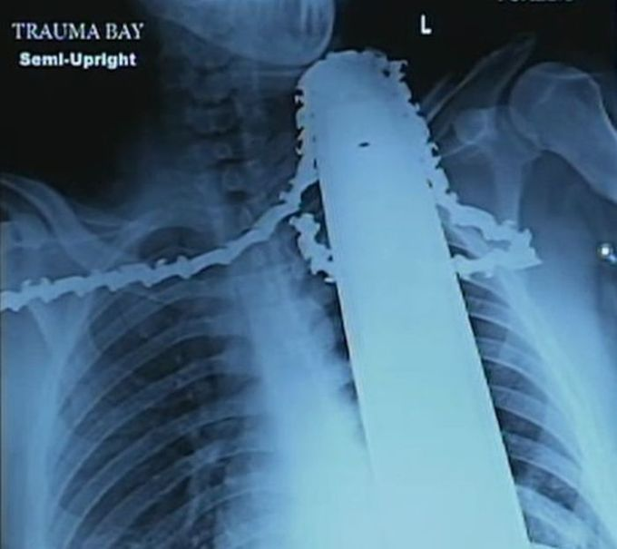 Chainsaw Stuck in Neck (6 pics)