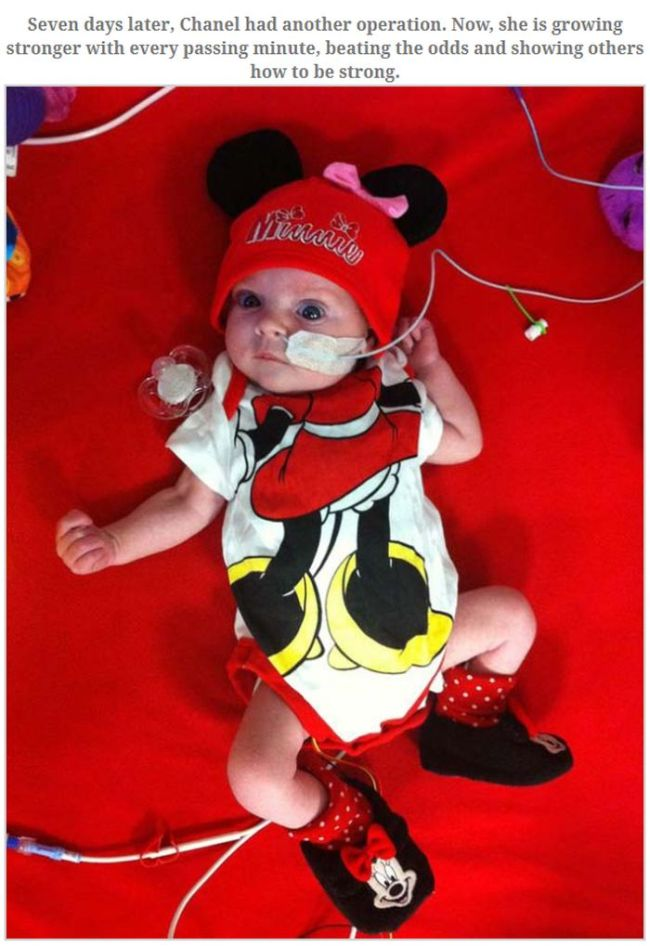 This Baby Became a Miracle (3 pics)