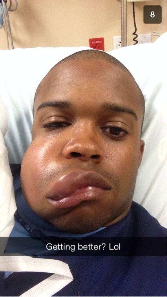 MLB Player Delino DeShields Jr Gets Hit in the Face (2 pics)