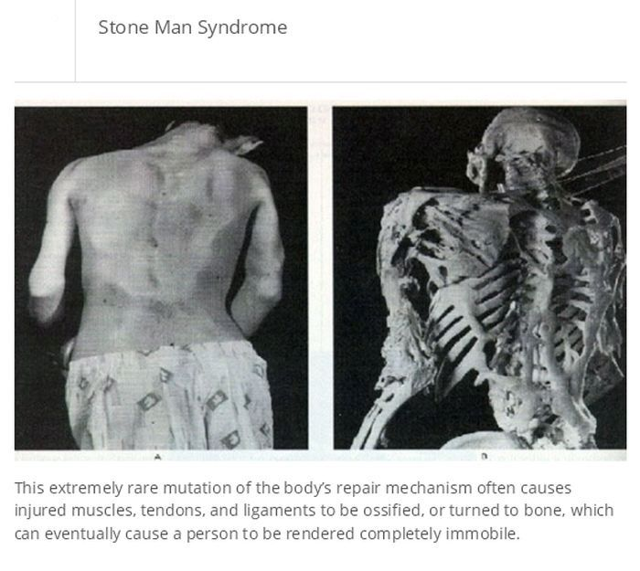 25 Medical Conditions You Don't Know About Yet (25 pics)