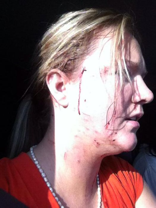 Woman Gets Roughed Up By A Rescue Cat (5 pics)