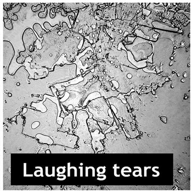 This Is What Dried Human Tears Look Like (5 pics)