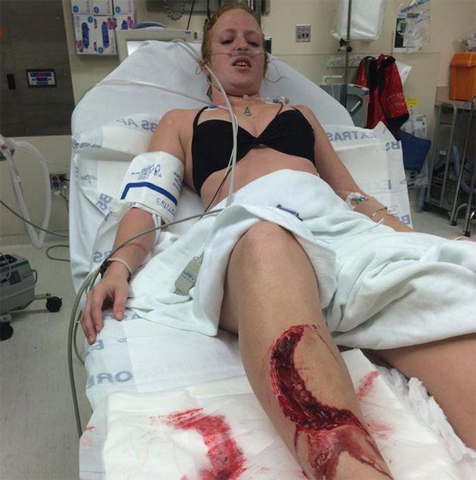 Florida Woman Bit By Shark, No Big Deal (5 pics)
