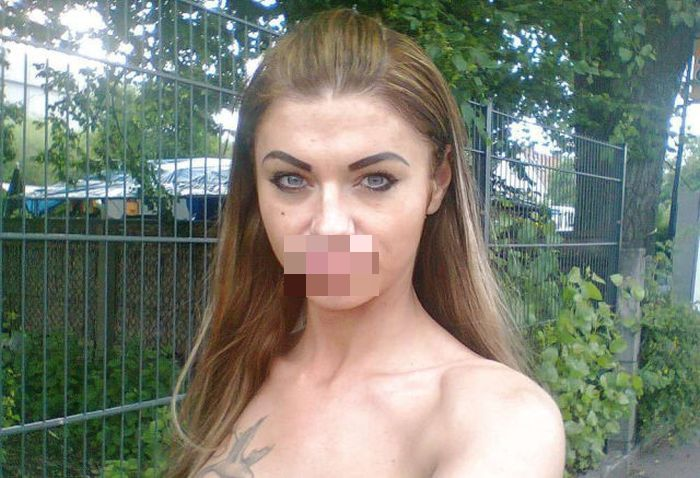 Plastic Surgery Gone Wrong (25 pics)