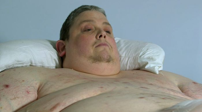 X-Ray Of A 980 Pound Man (5 pics)