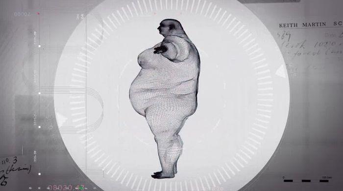 X-Ray Of A 980 Pound Man (5 pics)