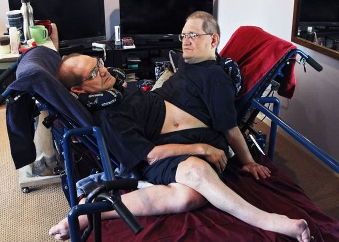 These Conjoined Twins Do Everything Together (11 pics)