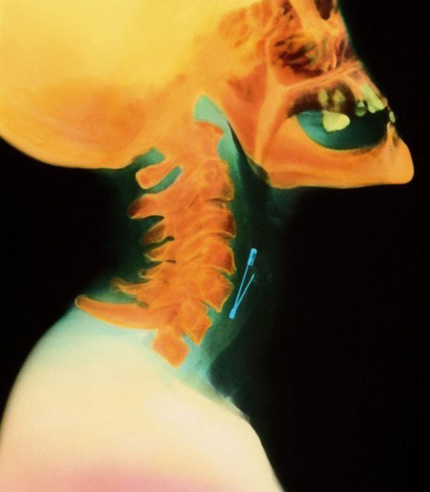 The Most Ridiculous X-Rays You'll Ever See (22 pics)