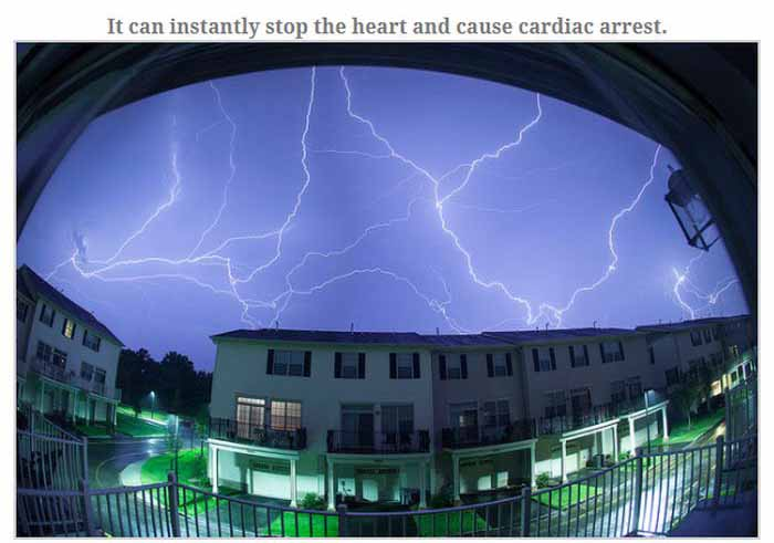 This Is What Happens When You Get Struck By Lightning (13 pics)