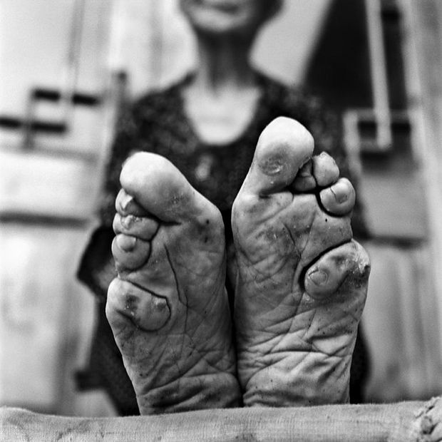 Foot Binding In China Is Coming To An End (12 pics)