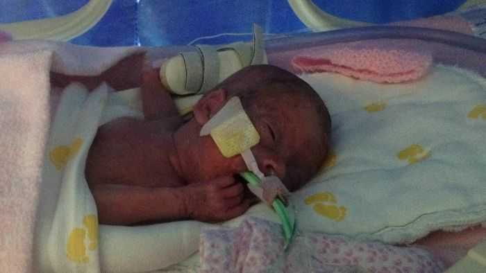 Baby Is Born 16 Weeks Early (84 pics)