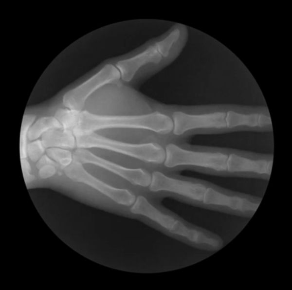 X-Ray GIFs That Show How Your Skeleton Works (5 gifs)