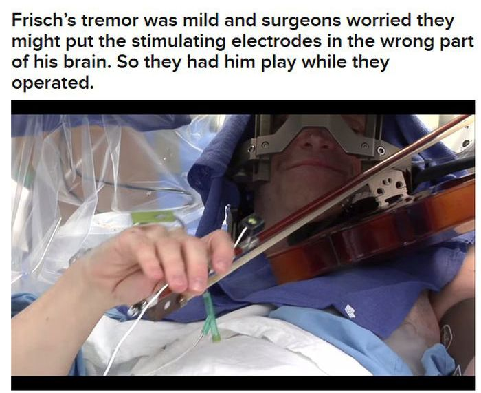 Man Plays Violin During His Own Brain Surgery (10 pics)