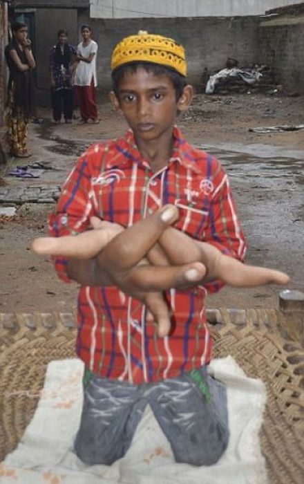 Little Boy With Big Hands (17 pics)