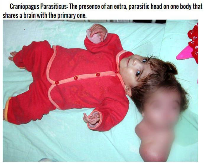 The Strangest Conditions And Defects People Are Born With (8 pics)