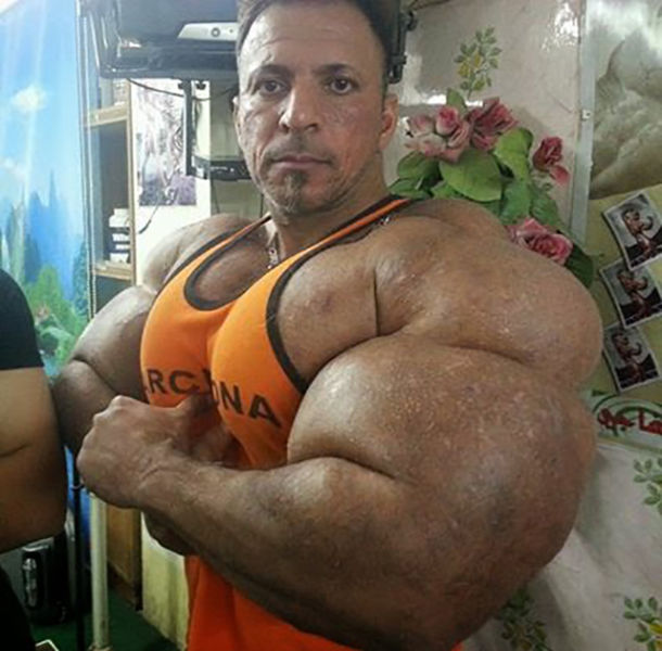 This Guy Uses Way Too Much Synthol (20 pics)