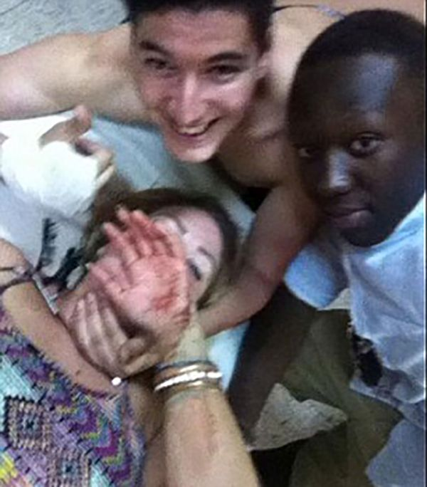 Girl Gets Stabbed Then Takes A Selfie (3 pics)