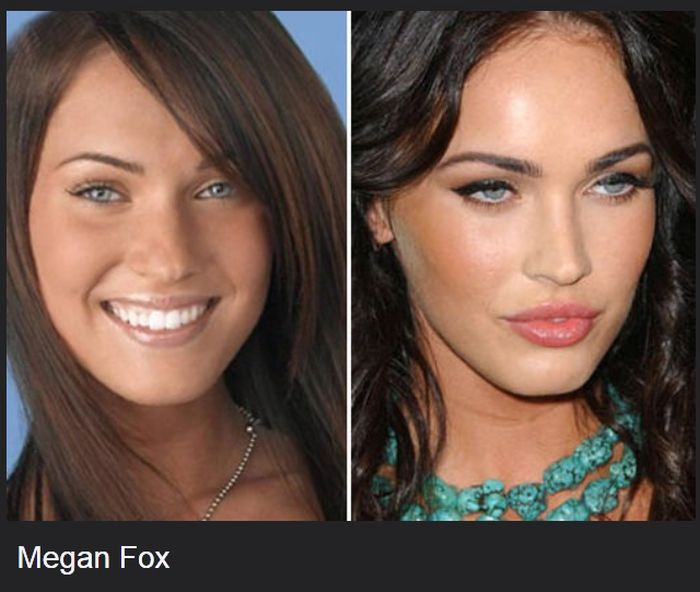 Celebrities Before And After Plastic Surgeries (22 pics)