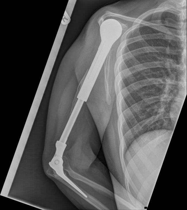 X-Ray Of A Metal Arm (4 pics)