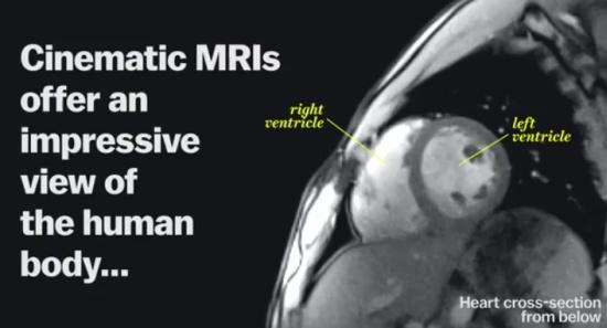 Human Life Viewed Through And MRI Machine