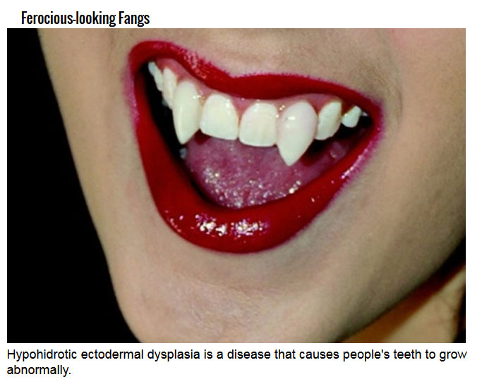 Humans Traits That Mimic Vampires (7 pics)