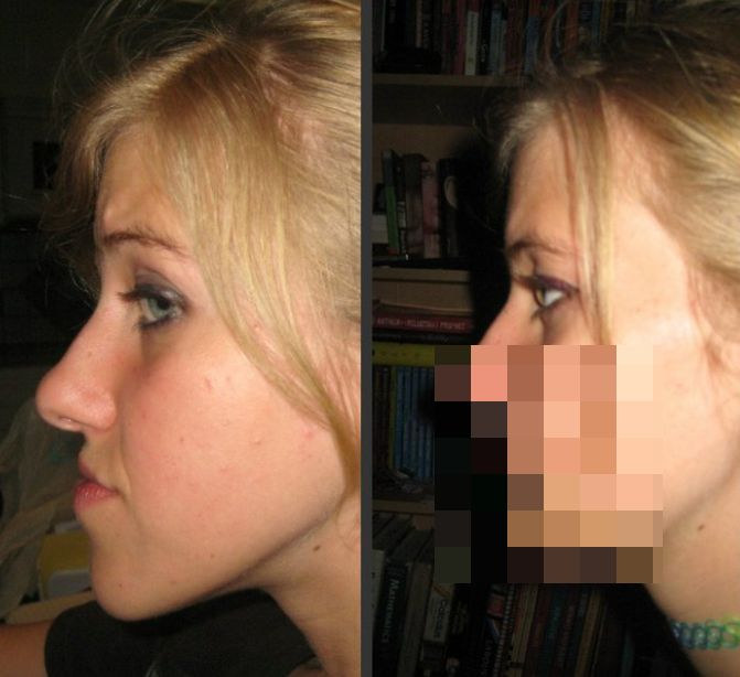 Life Changing Jaw Surgery (14 pics)