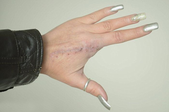 Finger Gets Amputated After A Spider Bite (5 pics)