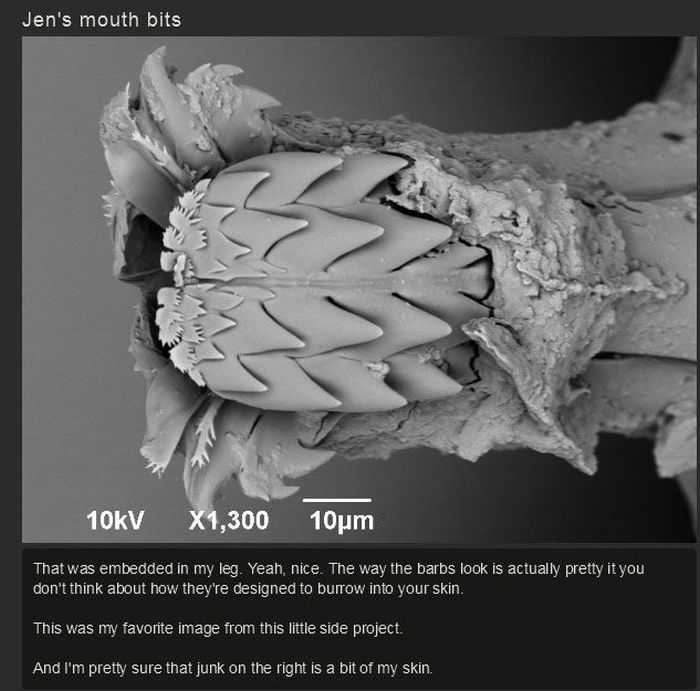 You Won't Believe What This Person Found On Their Foot (17 pics)