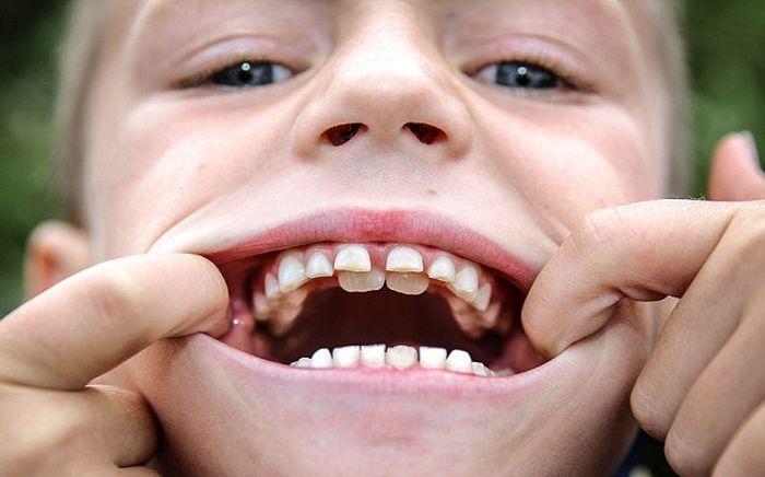 Two Sets Of Teeth (4 pics)