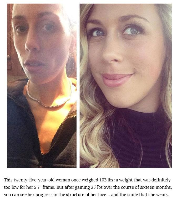 Inspiring Photos Of People Who Conquered Their Eating Disorders (15 pics)