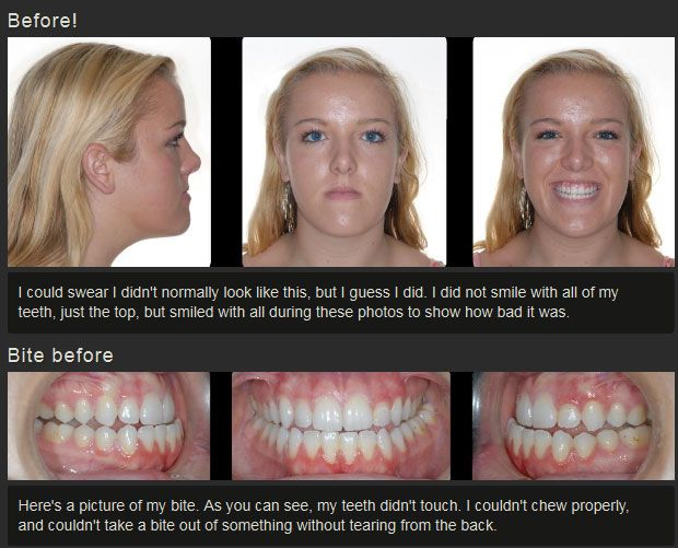 Before And After Jaw Surgery (12 pics)