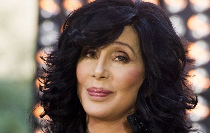 Celebrities Who Had Plastic Surgery Before And After (53 pics)