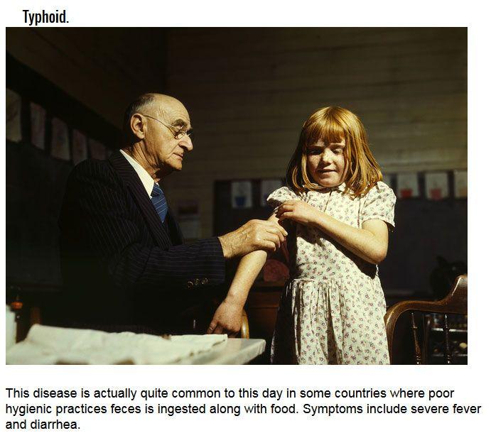 Deadly Diseases That Aren't Ebola (6 pics)