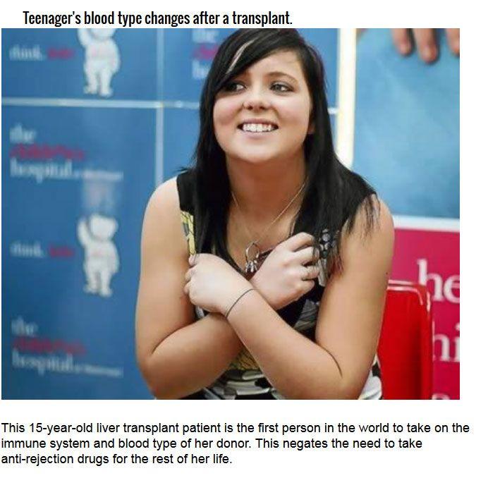 Strange Organ Transplant Stories From Around The World (10 pics)