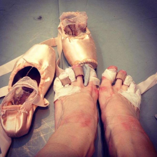 What The Danish Royal Ballet Does To Your Feet  (2 pics)