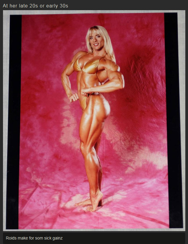 This Is What 20 Years Of Steroid Abuse Does To A Woman (5 pics)