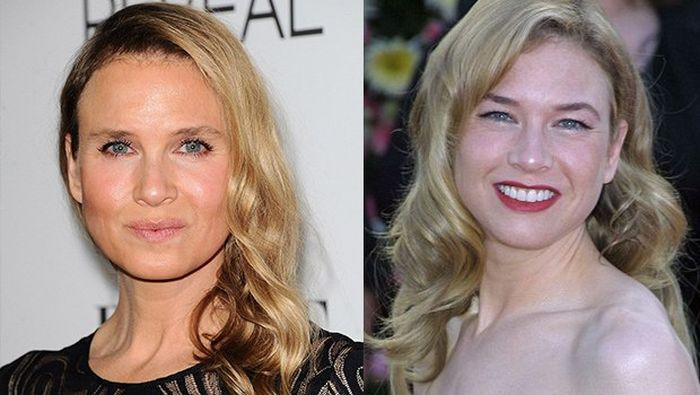 Everyone Is Talking About How Renee Zellweger Looks Now (10 pics)