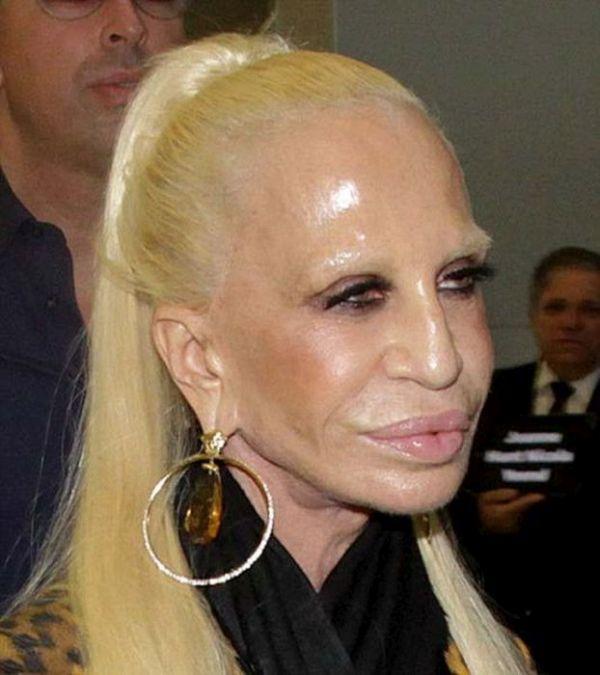 Donatella Versace Needs To Stop Getting Plastic Surgery (10 pics)