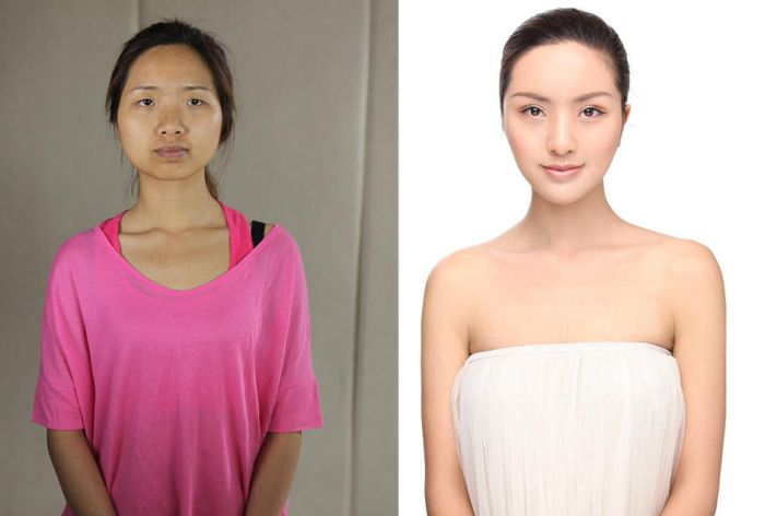 Plastic Surgery Is Popular In Asia (19 pics)