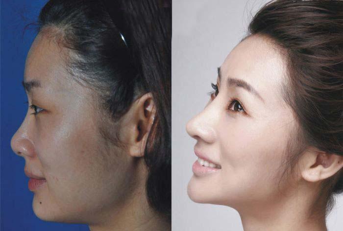 Plastic Surgery Is Popular In Asia (19 pics)