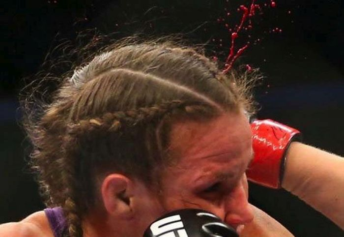 Leslie Smith's Ear Explodes At UFC 180 (5 pics)