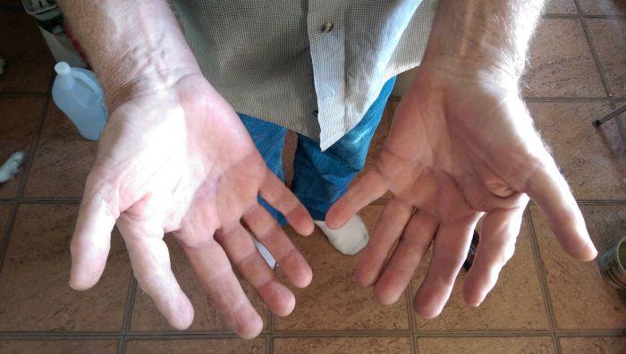 Six Fingers (3 pics)