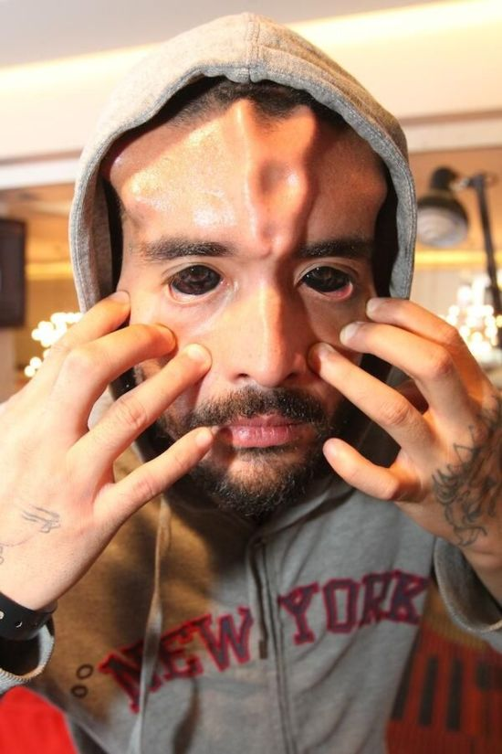 This Is The Grossest Nose Modification Ever (13 pics)